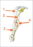 Schematische Abbildung: 1. Humerus, 2. Nervus ulnaris, 3. Radius, 4. Sulcus nervi ulnaris
