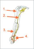 Schematische Abbildung: 1. Humerus, 2. Nervus ulnaris, 3. Radius, 4. Loge de Guyon